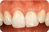 неправильная форма зубов
