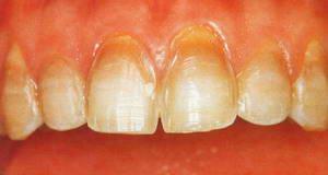 препарированные зубы под виниры