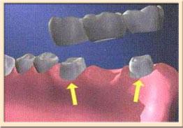 мостовидный протез. Схематический вид