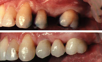 отсутствие одного зуба, до и после восстановления