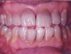 Татрациклиновые зубы до профессионального отбеливания