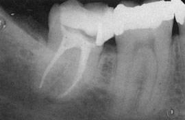 запломбированные каналы  - рентген снимок