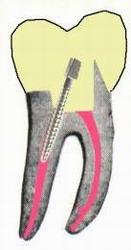 пломбирование зуба после установки штифта