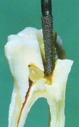 глубокая кариозная полость сообщается с полостью нерва