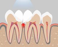 нависающий край пломбы на правом зубе