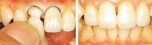фиксация коронок на препарированные зубы